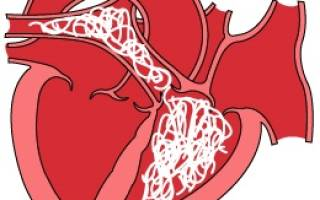 Сердечные черви или глисты у собаки: причины и методы лечения