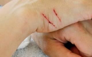 Болезнь кошачьих царапин: симптомы и лечение, что это такое, профилактика